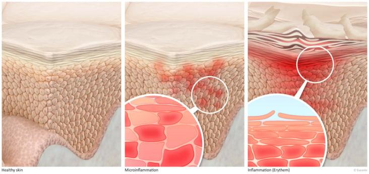 Epidermis detail