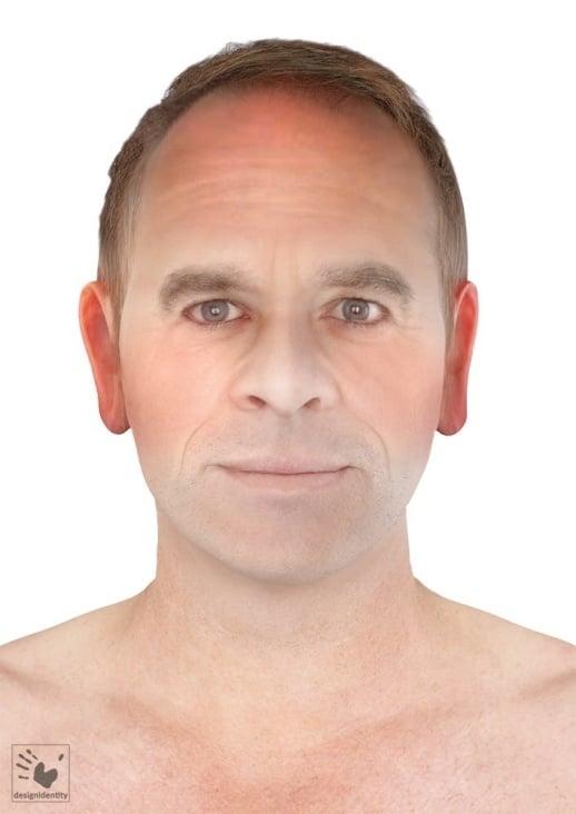 PFV Antlitzdiagnostik Male No3