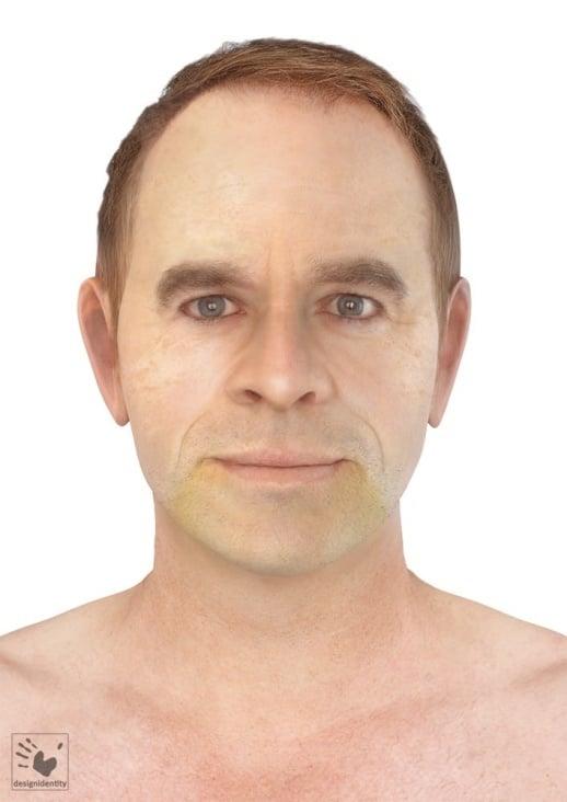 PFV Antlitzdiagnostik Male No6