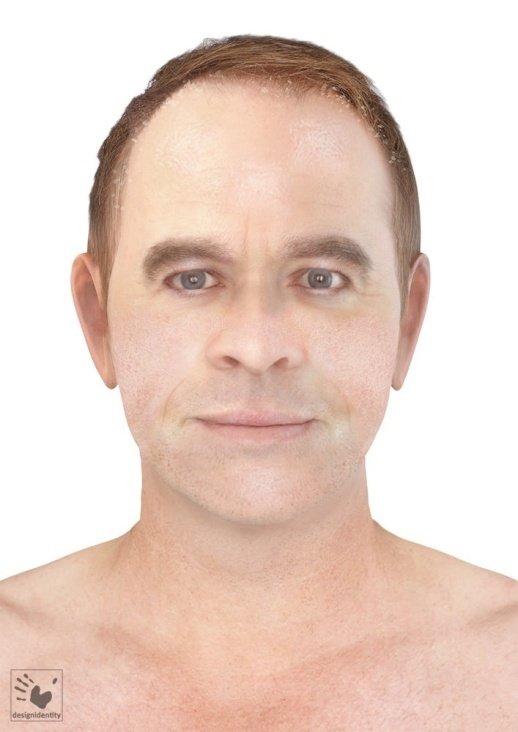 PFV Antlitzdiagnostik Male No8