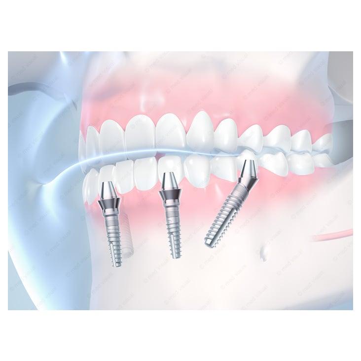 Medizinische 3D-Illustrationen von Zahnimplantaten für eine Zahnklinik
