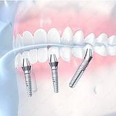 """""""Zahnimplantate: Medizinische Illustrationen"""" von Med Visual"""