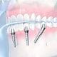 Zahnimplantate: Medizinische Illustrationen